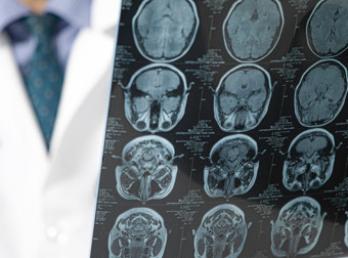 Brain tumor surgeon in Aurangabad